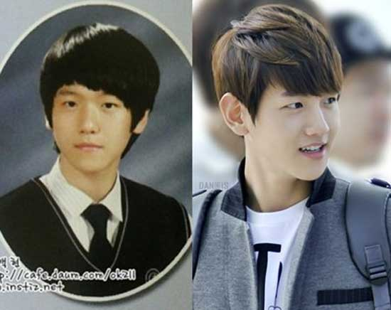 Baekhyun Plastic Surgery Before After Pictures