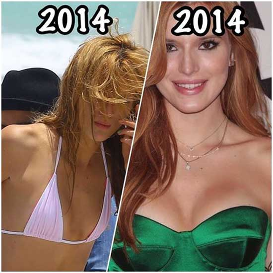Bella Thorne Boob Job Then and Now