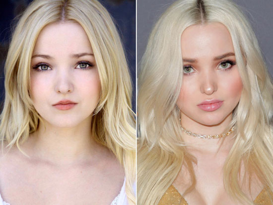 Dove Cameron Before and After Plastic Surgery Pictures
