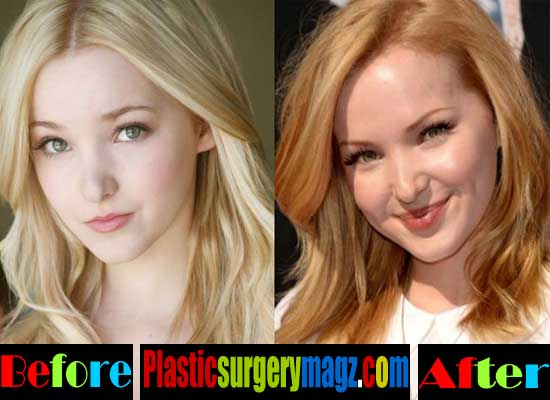 Dove Cameron Lip Injections Before and After