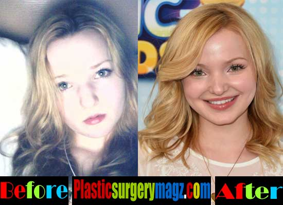 Dove Cameron Nose Job Before and After