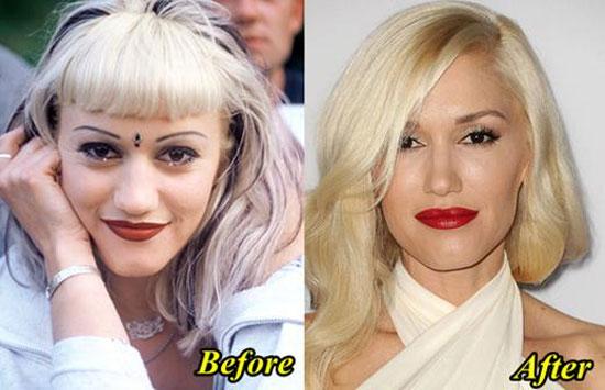 Gwen Stefani Nose Job Before After