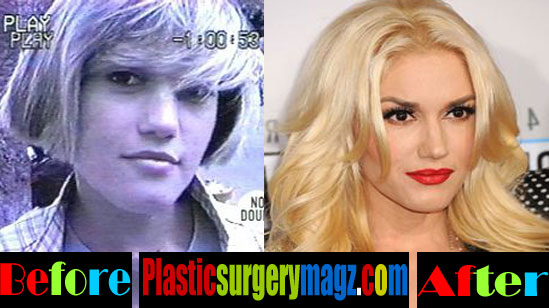 Gwen Stefani Nose Job Pictures