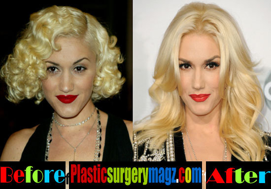 Gwen Stefani Nose Job Then and Now