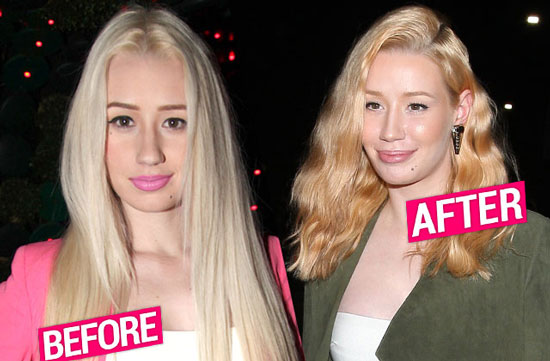 Iggy Azalea Nose Jobs Before After Pictures