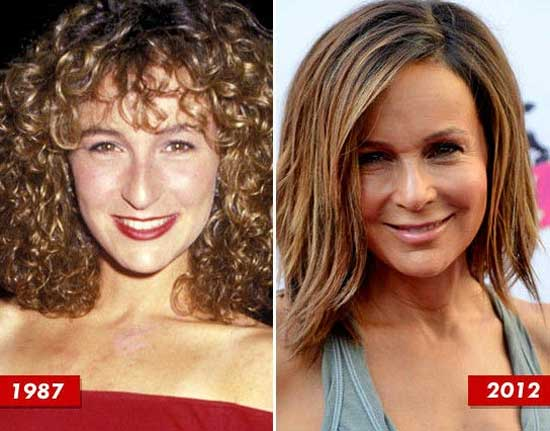 Jennifer Grey Before and After Nose Job Photos