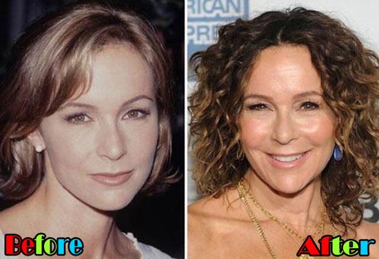 Jennifer Grey Nose Job Before and After Photos
