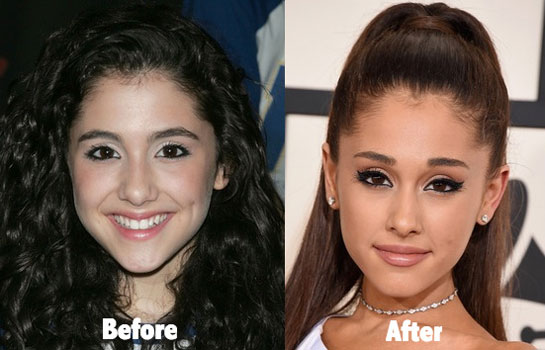 ariana grande nose job before and after