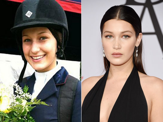 bella hadid nose before and after
