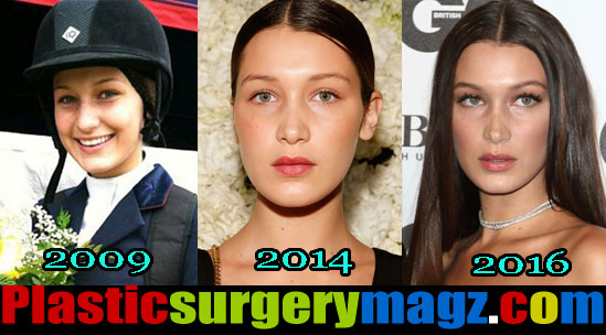 bella hadid nose job before and after pictures