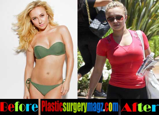 hayden panettiere breast implants before and after