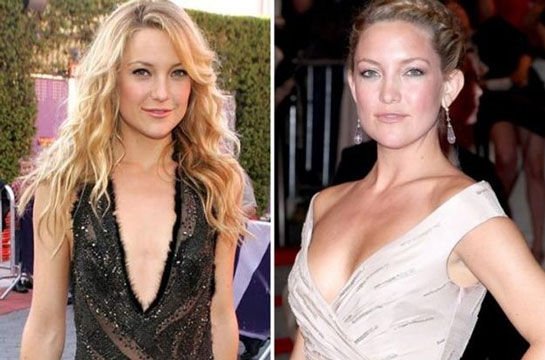 kate hudson before and after boob job
