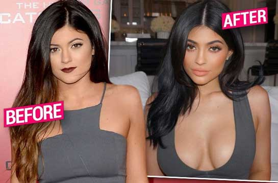 kylie jenner breast job