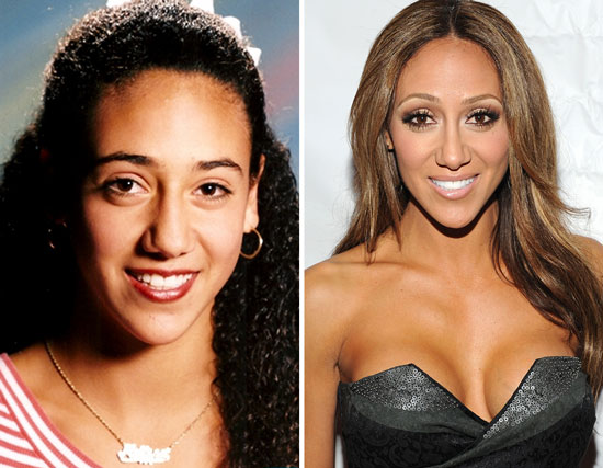 melissa gorga nose before and after