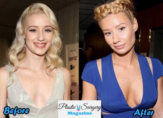 iggy azalea boob job before and after