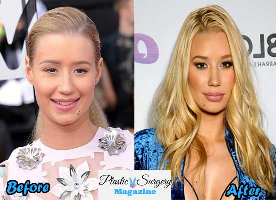 iggy azalea nose jobs before and after