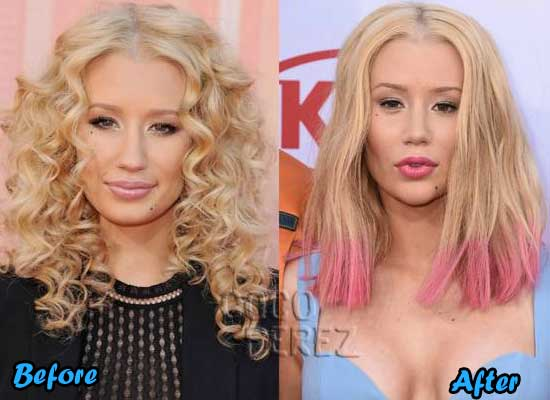 iggy azalea plastic surgery before and after