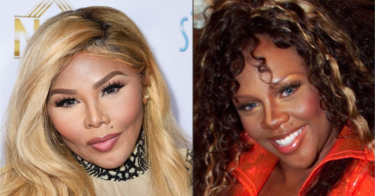 Lil Kim Before & After Plastic Surgery