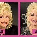 Dolly Parton Nose Job
