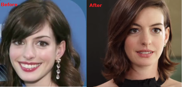 Anne Hathaway Plastic surgery Pic 11