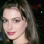 Anne Hathaway Plastic surgery Pic 12