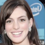 Anne Hathaway Plastic surgery Pic 13