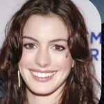 Anne Hathaway Plastic surgery Pic 14