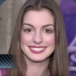 Anne Hathaway Plastic surgery Pic 3