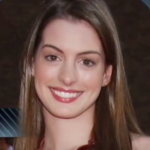 Anne Hathaway Plastic surgery Pic 5