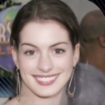 Anne Hathaway Plastic surgery Pic 7