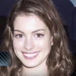 Anne Hathaway Plastic surgery Pic 8