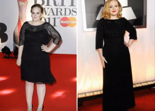 Adele Liposuction Before and After 1