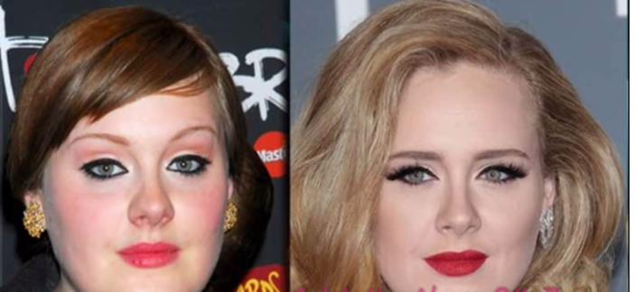Adele Nose Job