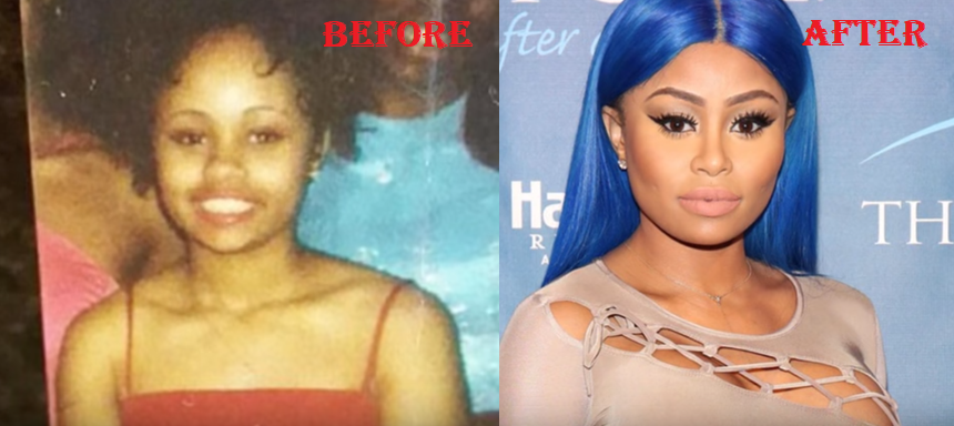Blac Chyna Before Plastic Surgery