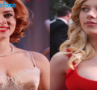 Scarlett Johansson Breast Reduction